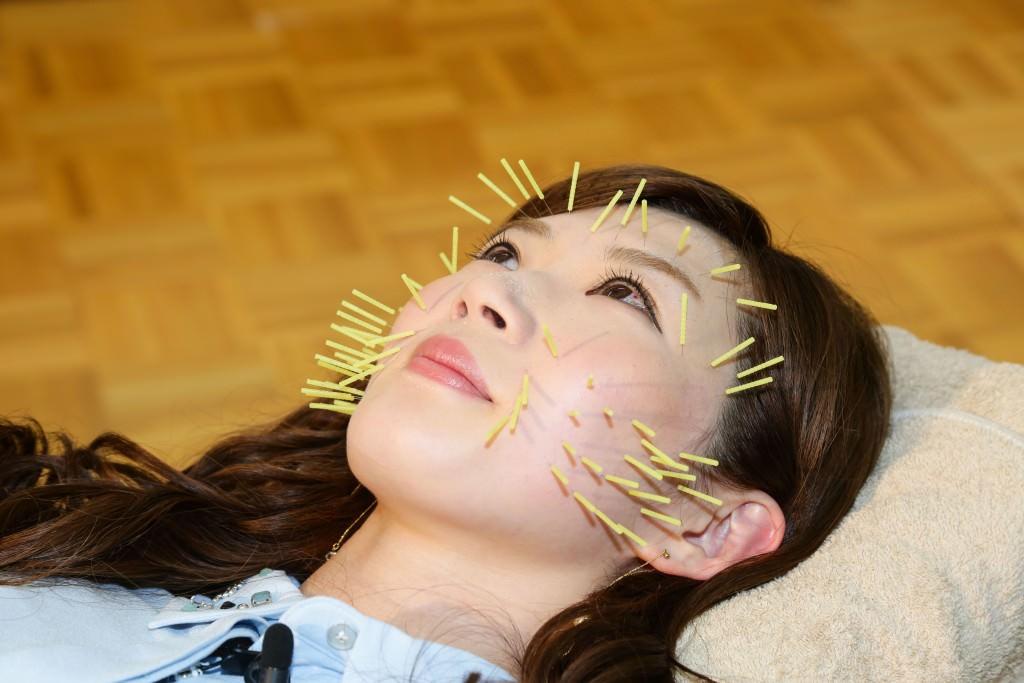 4月9日『鍼灸の日』AKB48田名部生来さんに小川真由子先生が美容鍼灸