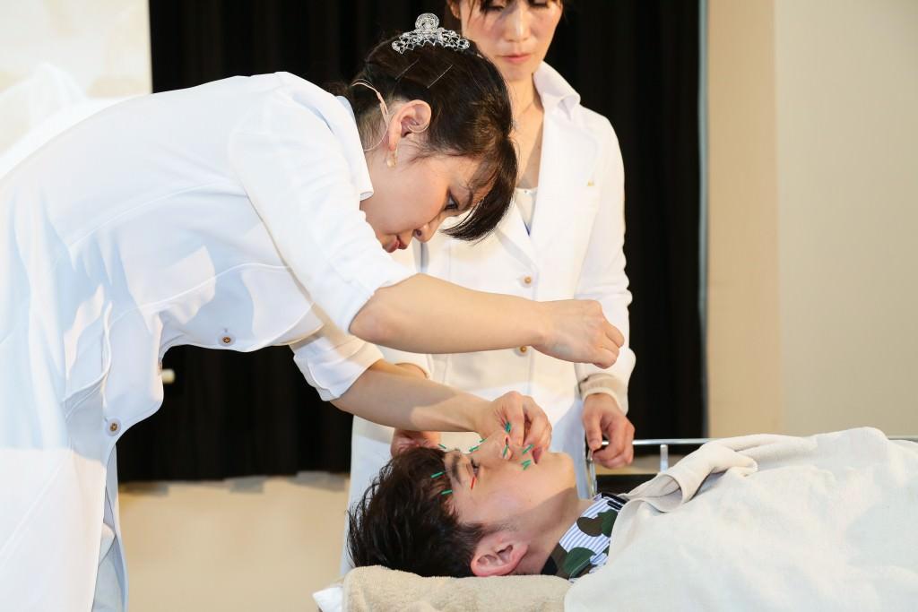 4月9日『鍼灸の日』ハリー杉山さんに折橋梢恵先生が美容鍼灸